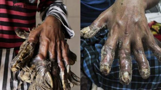 Las manos de Abul Bajandar, conocido como el 'hombre árbol', antes y después de las operaciones en sus manos.