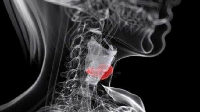 Recreación de una afección de laringe.