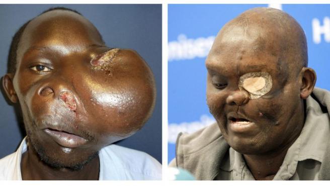 El paciente Mike Koech en dos imágenes, antes y después, de ser operado por el doctor Pedro Cavadas para retirarle un ameloblastoma gigante en la base del cráneo que le deformaba la cara.