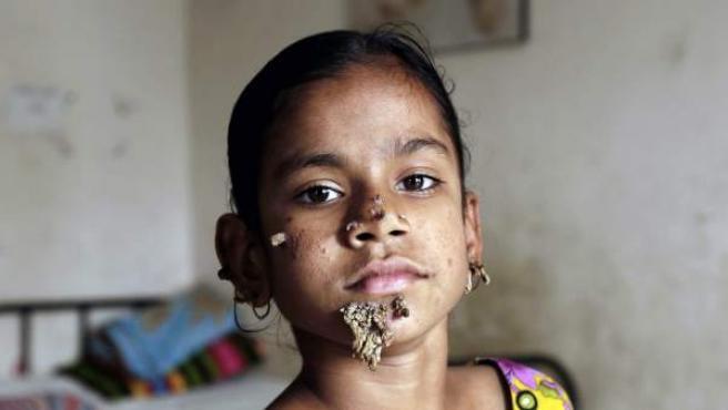 A la pequeña Shahana Khatum, de 10 años, se le ha diagnosticado la enfermedad del 'hombre árbol'.
