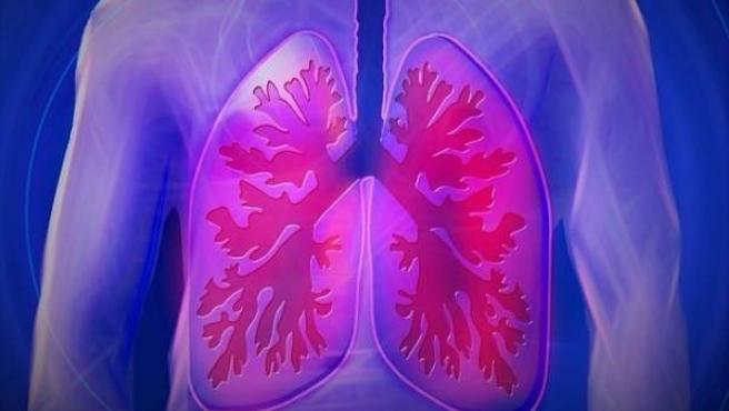 Imagen de los pulmones en un paciente.