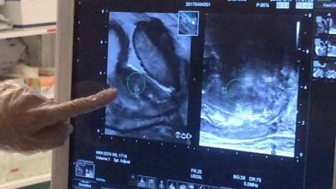 que una biopsia prostata