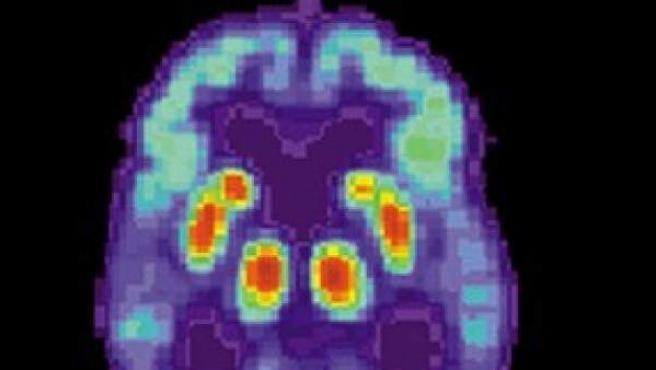 Tomografía de positrones de un cerebro humano con enfermedad de Alzhéimer. Imagen de NIH.
