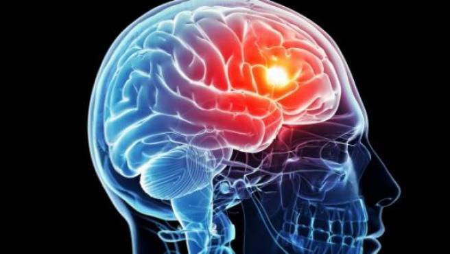 Ilustración de un cerebro dañado.