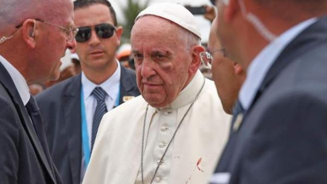 Imagen del papa Francisco durante su visita a Cartagena de Indias, donde se aprecia un golpe en el pómulo izquierdo y la ceja.