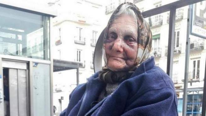 Esta indigente dormía en la calle cuando fue violentamente apaleada por cuatro individuos.