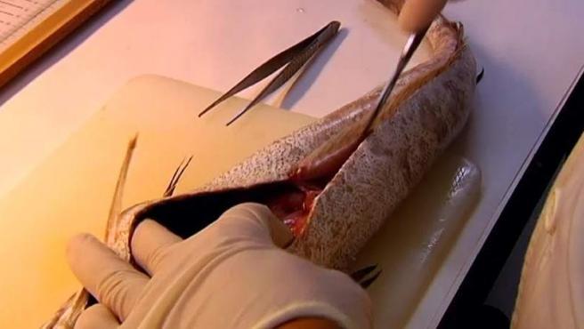 Cada año hay 8.000 contagios en España de este parásito intestinal.