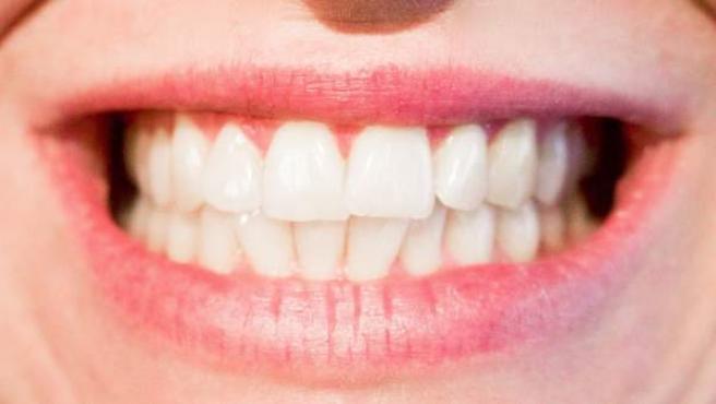 Imagen de dientes, bruxismo.
