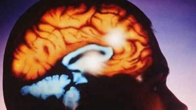 Naegleria Fowleri es una ameba que principalmente ataca al cerebro humano.