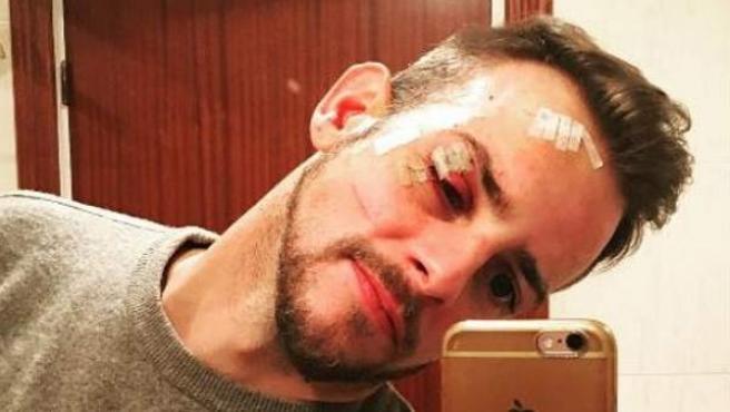 El cantante Álex Casademunt muestra su estado tras la agresión sufrida en una discoteca en enero de 2017.