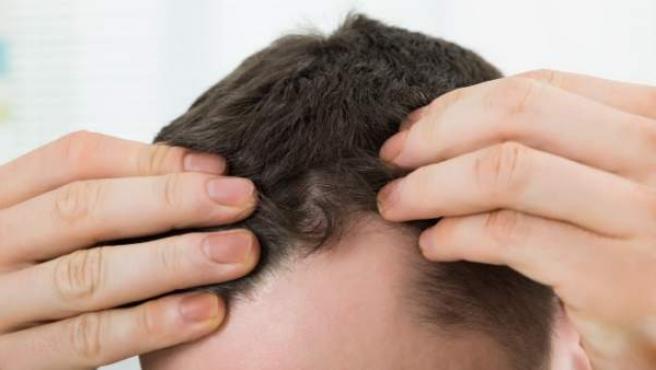 La calvicie prematura afecta cada vez a más hombres.
