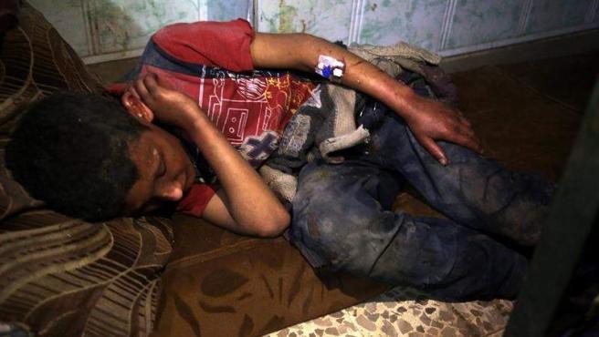 Niño herido en el ataque químico del Gobierno sirio sobre Duma.