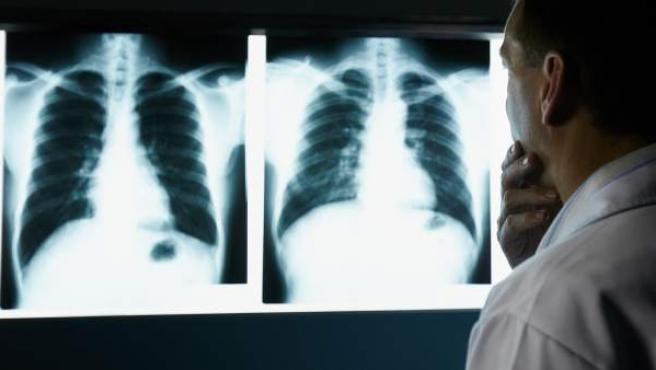 El cáncer de pulmón puede manifestarse de diferentes maneras.