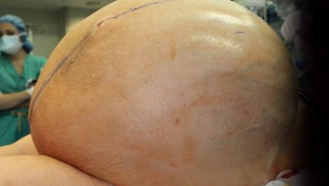 Imagen del tumor de 60 kg extirpado a una mujer de 38 años de Connecticut.