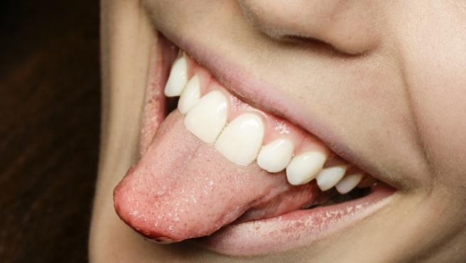 Conviene limpiar la lengua al menos dos veces al día.