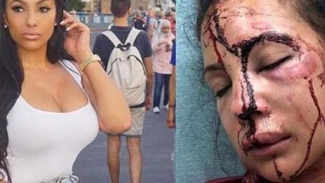 Delicia Cordon, expareja del jugador de la NFL LeSean McCoy, ha sido víctima de una brutal agresión.