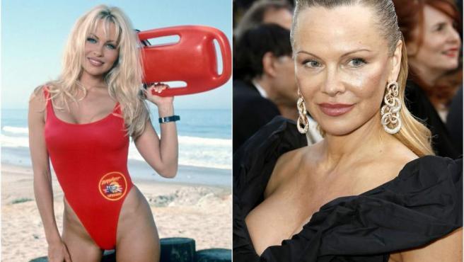 La estrella de 'Los vigilantes de la playa' está obsesionada con su físico y eso le ha llevado a someterse a varias operaciones que han acabado desfigurando su rostro. Tiene 51 años.