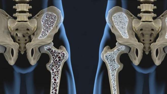La osteoporosis adelgaza y debilita los huesos, lo que causa que se quiebren fácilmente.