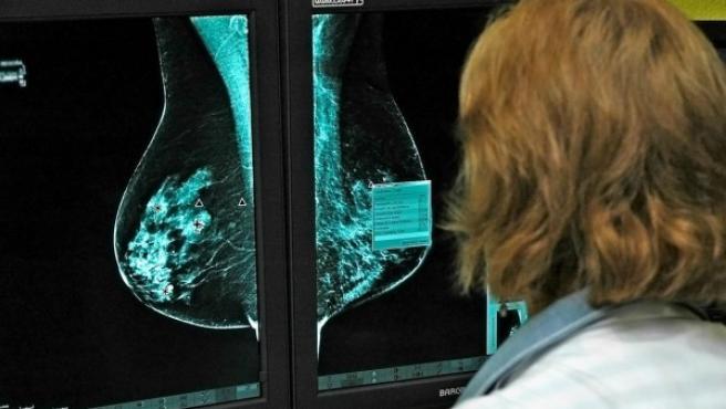 Una especialista trabajando con un mamógrafo digital.