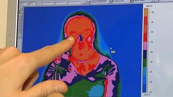 Imagen de una termografía.