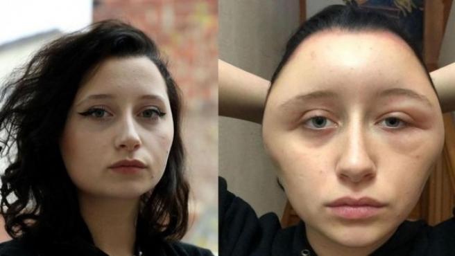 La cara deformada de la joven a causa del tinte.
