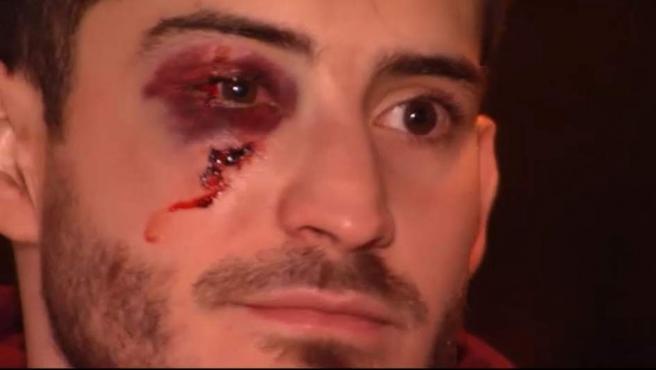 Diego, el joven agredido en Barcelona por ser gay.