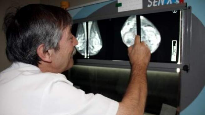 Una médico examina una mamografía.