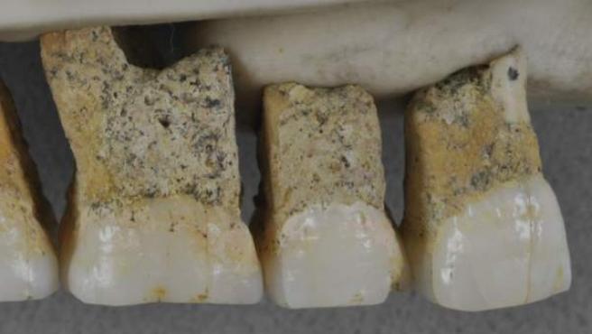 Dentadura superior derecha de 'Homo luzonensi'.