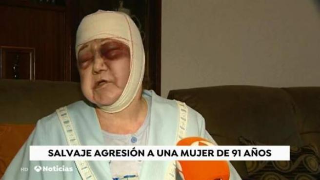 Valentina Sánchez, la mujer de 91 años agredida.