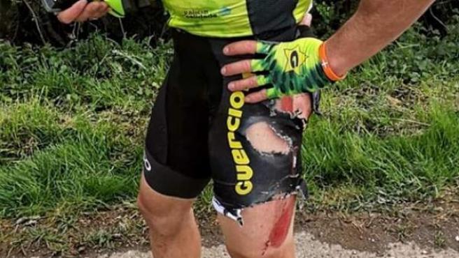 El alicantino publicó una foto de las secuelas del accidente.