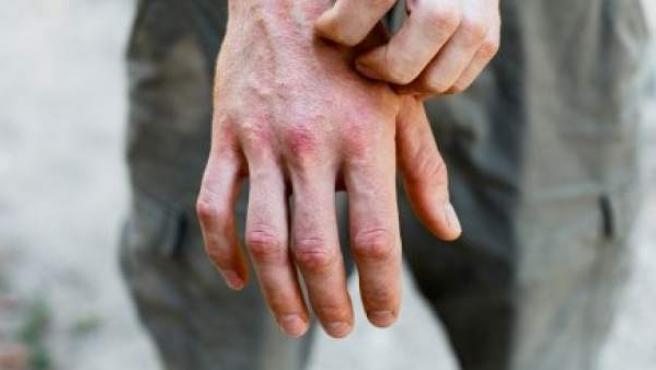 <p>Paciente con dermatitis.</p>