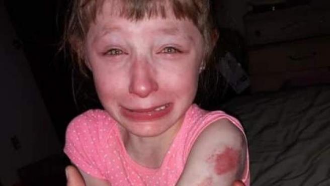 Imagen de la niña Lillian Waldron tras ser atacada por una compañera en un autobús escolar.