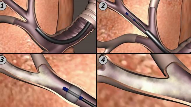 Imagen del pulmón tras la intervención en la que se ha aplicado la nueva técnica quirúrgica.