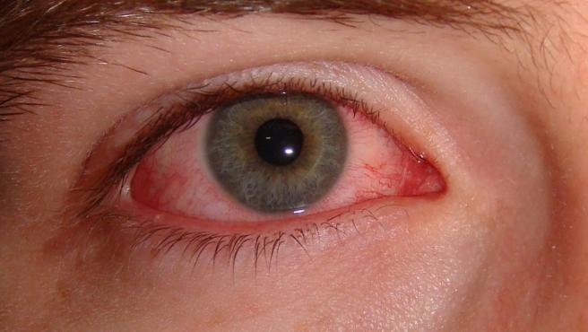 Imagen de un ojo con conjuntivitis.