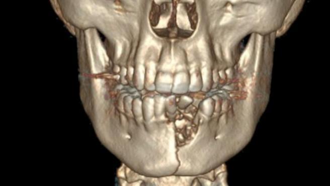 Tomografía computerizada de un joven al que le estalló su cigarrillo electrónico.c