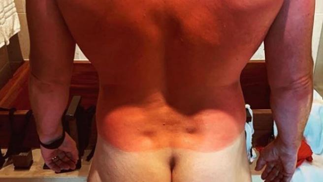 Espalda quemada de Chris Pratt en su luna de miel.