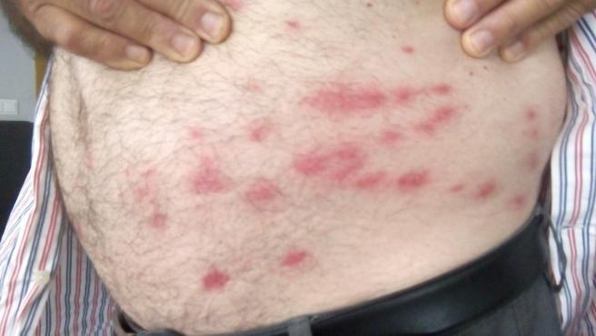 Picaduras de mosca en el cuerpo de un agricultor.