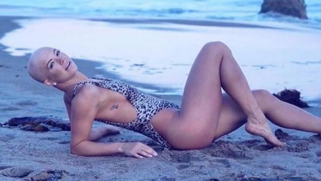 Christie Valdiserri, la modelo que lucha contra el tabú de la alopecia femenina.
