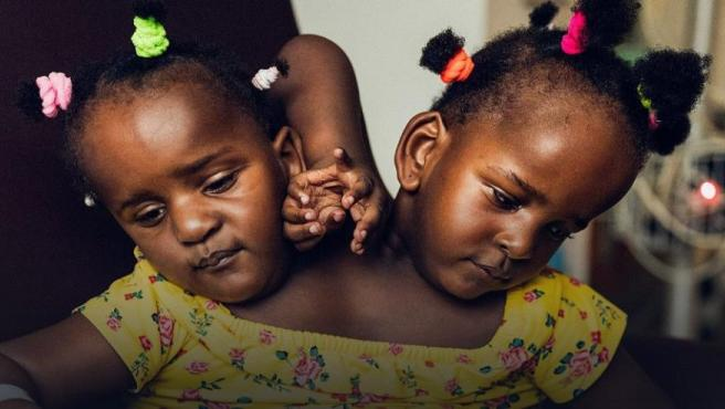 Marieme y Ndeje, las pequeñas siamesas de Senegal.