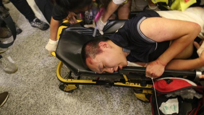 Un herido en las protestas en el aeropuerto de Hong Kong