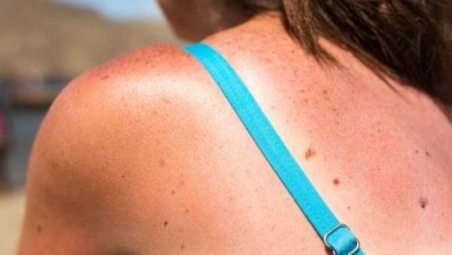 Una mujer muestra en su espalda una quemadura producida por tomar el sol.