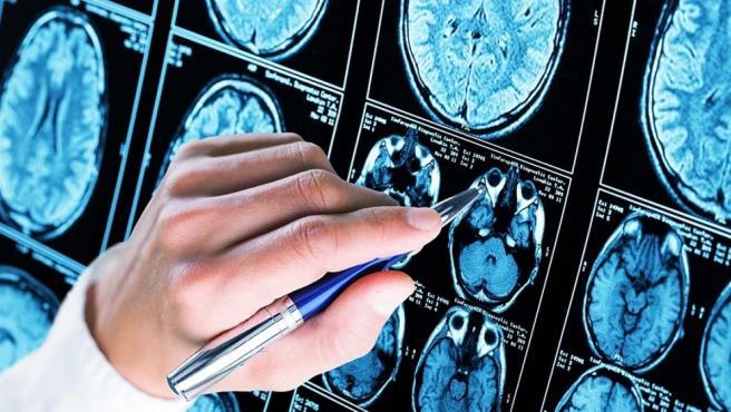 La enfermedad del alzhéimer se caracteriza por la pérdida progresiva e irreversible de las capacidades cognitivas en los pacientes.