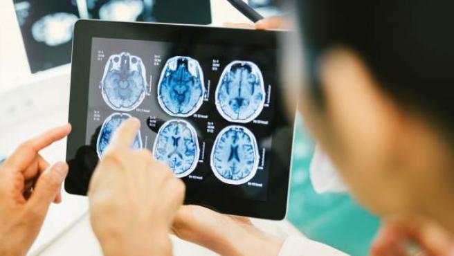 El cerebro es uno de los órganos más desconocidos.