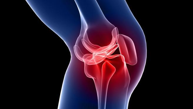 Imagen de una rodilla inflamada.