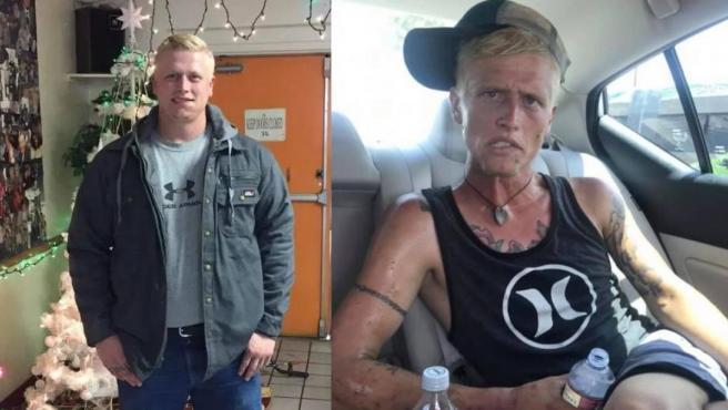 Imágenes del antes y el después de Cody Bishop, un adicto a las drogas.