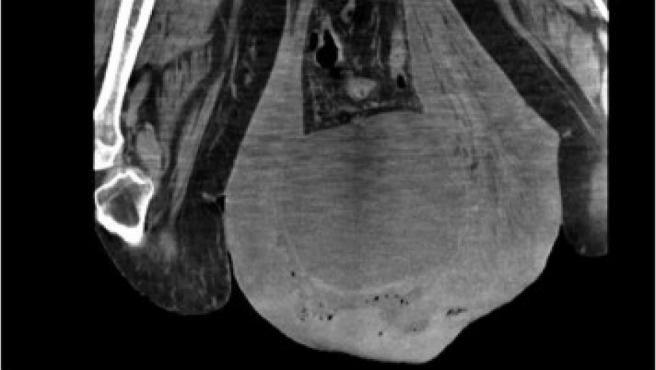 Radiografía de un hombre el escroto inflamado.