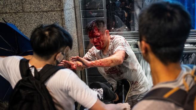 El agresor, herido tras ser atacado por los manifestantes.