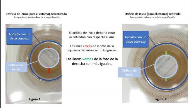 apósitos para ostomía Surfit, Combihesive y Durahesive.