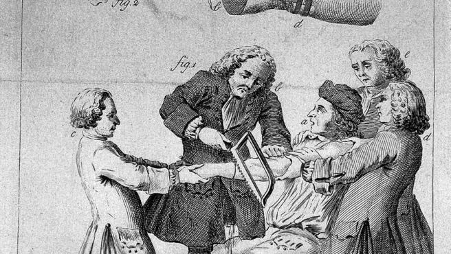 Una ilustración de 1764 de una amputación. Antes de la invención de la anestesia, era frecuente que varios ayudantes ayudasen al cirujano sujetando al enfermo.