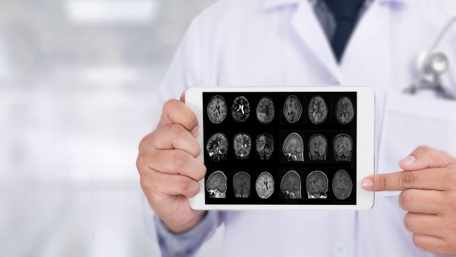 Alzheimers Disease concept Brain degenerative diseases Parkinson